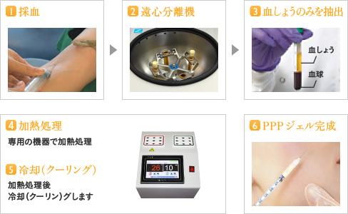 1.採血/2.遠心分離機/3.血しょうのみを抽出/4.加熱処理/5.冷却(クーリング)/6.PPPジェル完成