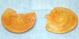 石灰化が起き、中の液体は無い状態。CMCバッグは、挿入期間の経過に連れて青色→緑色→黄色と変色するのが特徴