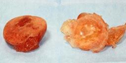 皮膜が厚く癒着、石灰化、変形し破損している